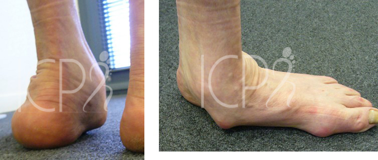 douleur pied plat